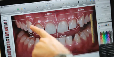 Digital-Smile-design-Estetica-Dental