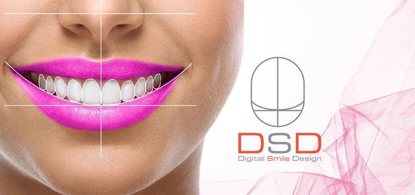 dsd-smilestudioistanbul-clinic